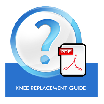 Knee Replacement Guide