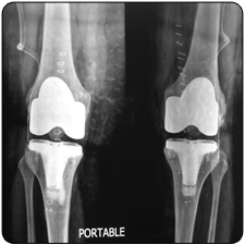 Revision Total Knee Replacement