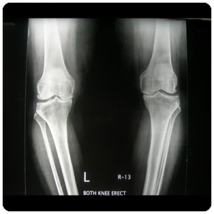 Advance-Surgery-Knee-1