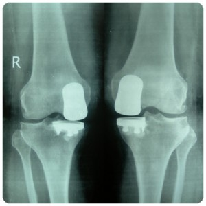 Advance-Surgery-Knee-1A