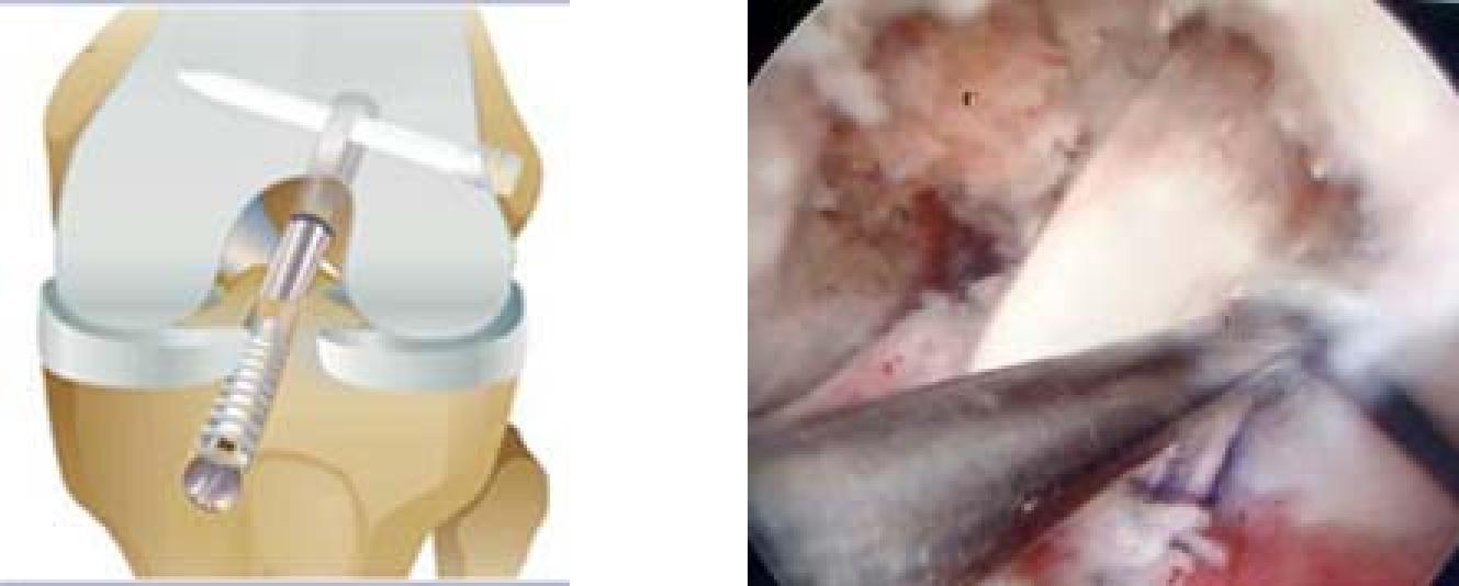 Reconstruction of Anterior Cruciate Ligament(ACL)