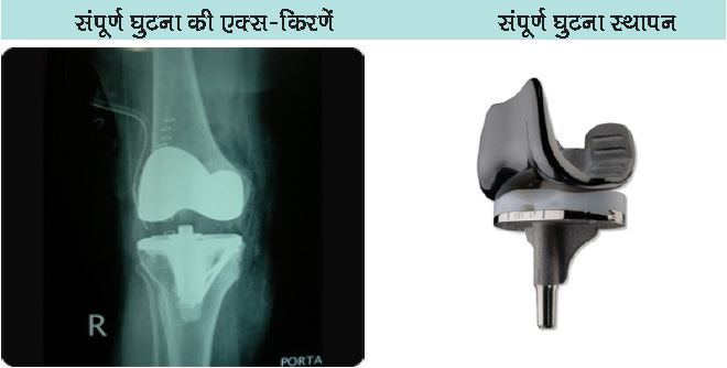 Knee Replacement Faq
