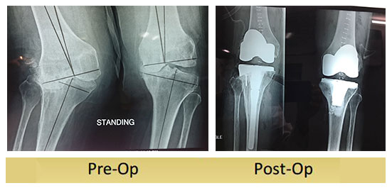 http://www.drshekharagarwal.com/wp-content/uploads/2017/03/Valgus-knee-operated-by-dr-shekhar-agarwal.jpg