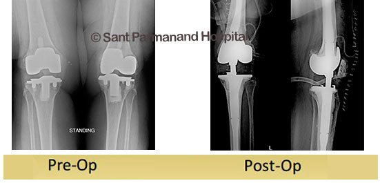 Revision Total Knee Replacement Dr Shekhar Agarwal