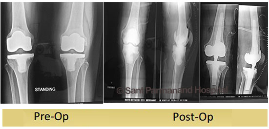http://www.drshekharagarwal.com/wp-content/uploads/2017/08/revision-knee-replacement-rotating-hinge-done-by-dr-shekhar-agarwal