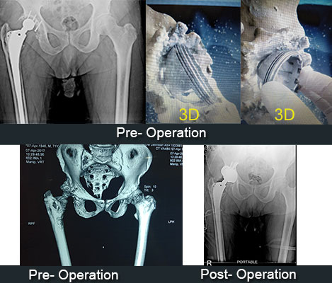 Re-Revision Total Hip Replacement
