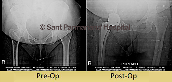 Total-Hip-Replacement-Dysplastic-Hip