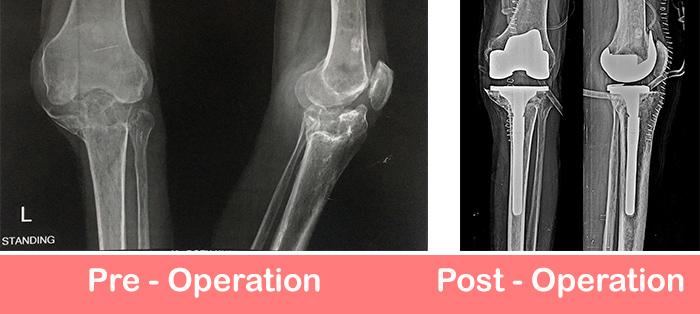 Primary-Complex-Knee