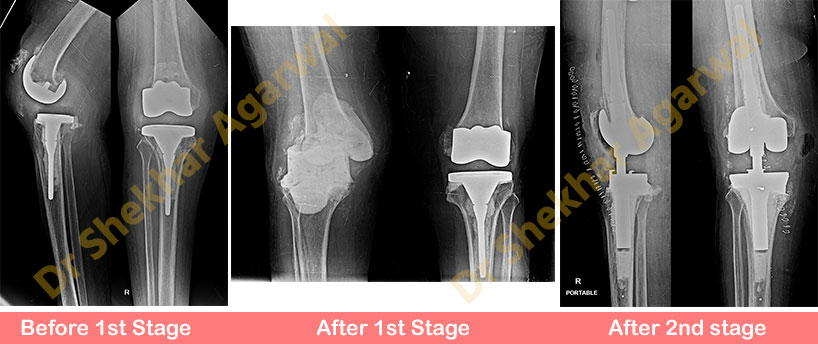 Revision Total Knee Replacement (RHK)